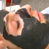 Professionelle Akne-Behandlung in Ettlingen