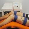 Neue Studie: Hochtontherapie hilft bei Polyneuropathie
