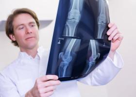 Neue Wege in der Atlas-Behandlung: O-PRAX Düsseldorf bieten mit ATLAS CURATIO® innovativen Behandlungspfad an